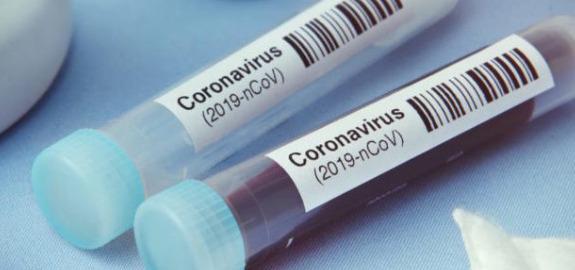 Coronavirus, infermieri Nursing Up a Zaia: Tampone a tutti gli operatori sanitari in Veneto? Non ci risulta ma se è vero pubblichi i dati