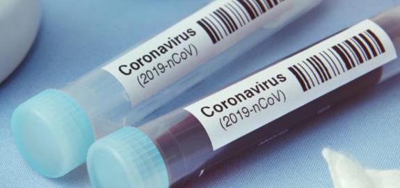 Coronavirus, infermieri Nursing Up: Al lavoro positivi asintomatici in Emilia Romagna è pura follia